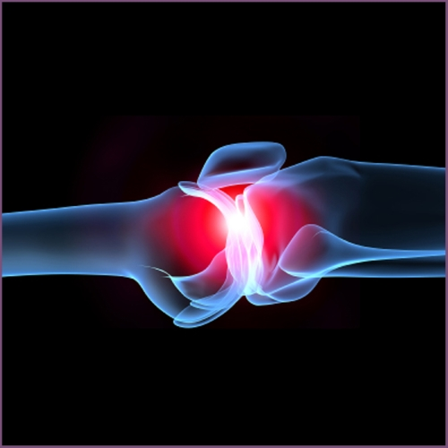 Хондропротекторы и противовоспалительные препараты